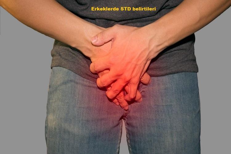 Erkeklerde STD belirtileri